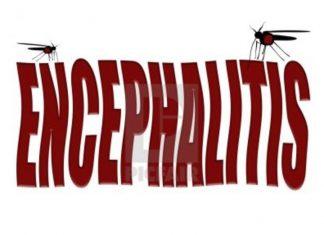 Encephalitis in Children