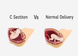 C-Section-Vs-Normal-Delivery