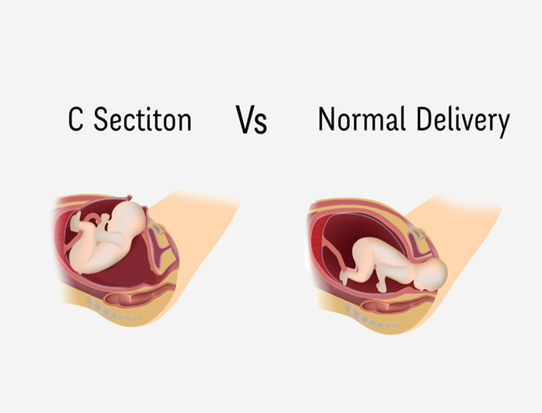 C-section vs  Normal delivery – How are they different