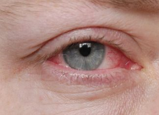 Conjunctivitis During Pregnancy