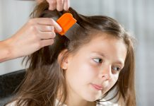 home remedies for head lice