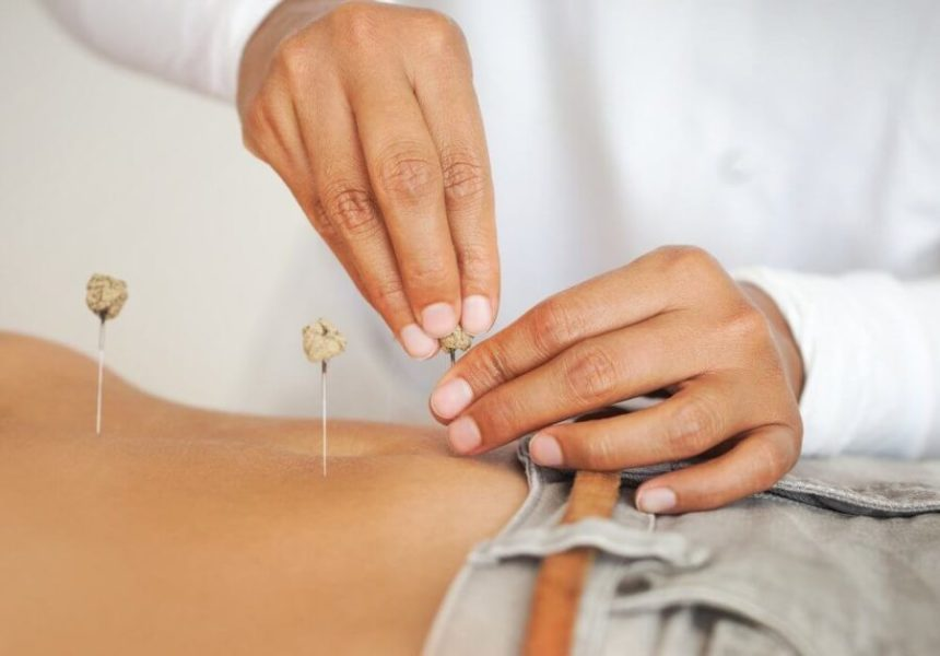 Pros And Cons Of Acupuncture During Pregnancy