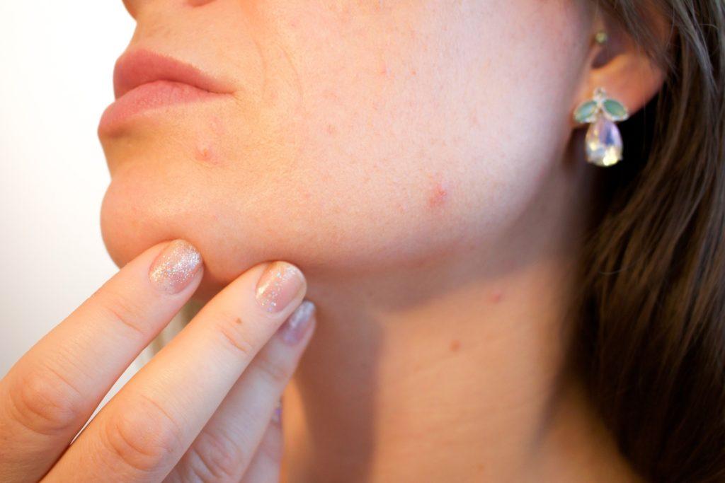 Best Health Tips for Teenage Girls