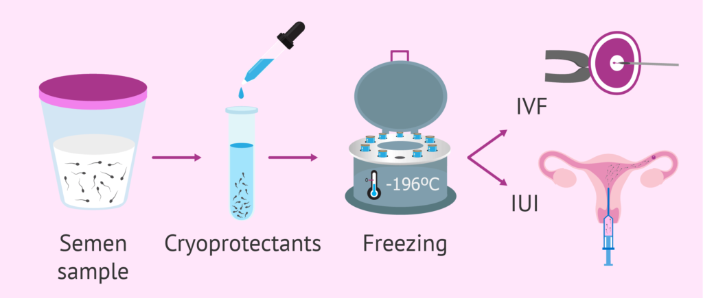 Know All About Freezing Sperm For Future Fertility