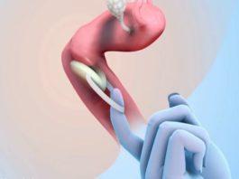 Effectiveness And Benefits Of Birth Control Sponge